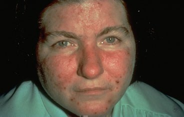 woman with acne rosacea