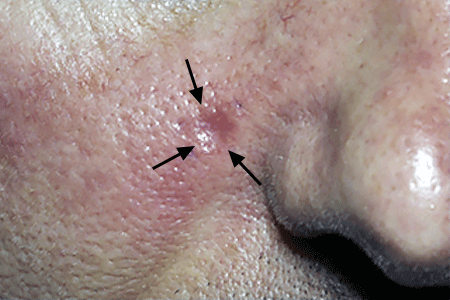Close-up of a patient's cheek with basal cell carcinoma