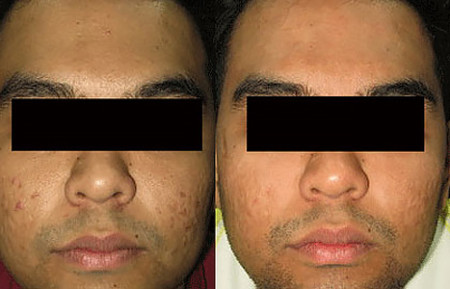 Fade dark spots in skin of color: Before and after clinical image