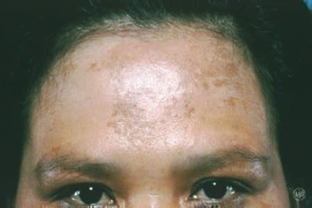 Melasma on a woman's forehead