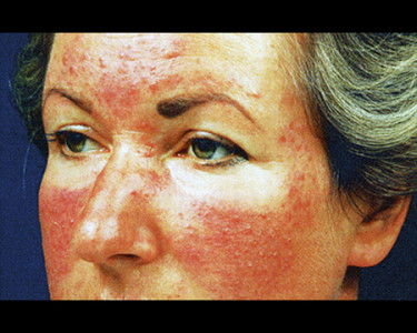 rosacea on woman's face