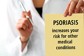 Doctor holding note on psoriasis risk