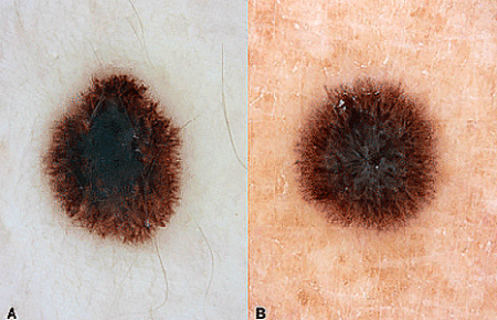 Comparison image of a spitz nevus mole and melanoma