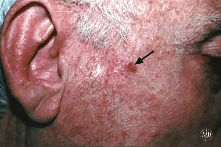 An age spot on the side of a man's face could be squamous cell carcinoma