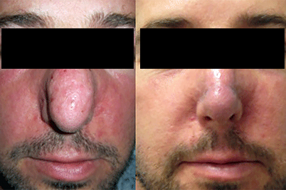 Rosacea Treatment Thickening Skin