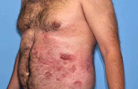 As cutaneous T-cell lymphoma worsens, a patient may have patches, plaques, and tumors