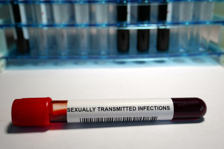 blood vial labeled sexually transmitted infections