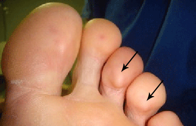Painful lumps on toes are called Osler nodes