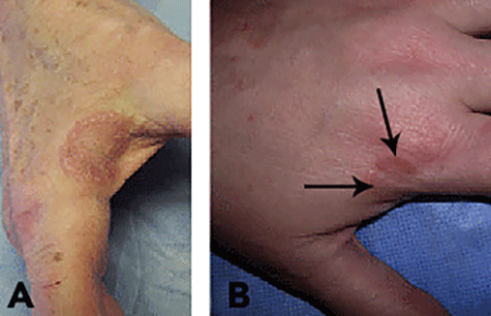 Localized granuloma annulare on skin