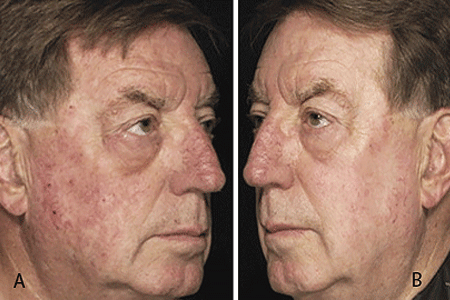 Images of a man before and after treatment for actinic keratosis