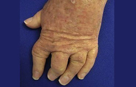 Joint destruction from psoriatic arthritis