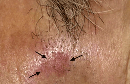 The reddish, pink patch below this man's sideburn is an actinic keratosis