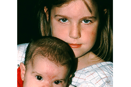 Sisters with salmon patch birthmarks