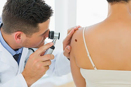 Dermatologist examining a mole on shoulder of a woman