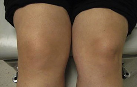 Psoriatic knees