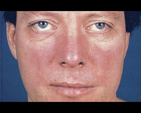 rosacea on man's face