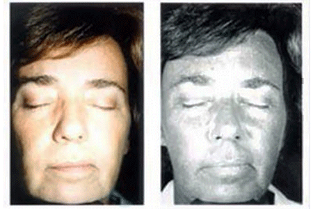 Prematurely aged skin from UV sun damage on face of 52 year old woman