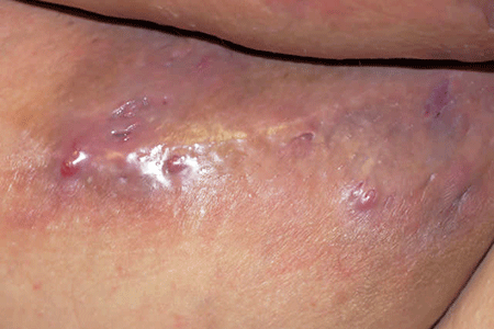 Hidradenitis suppurativa can leak fluid.