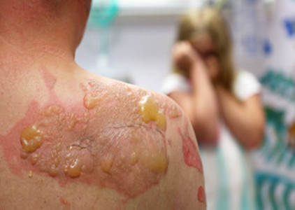 Third degree burn on back and shoulder of a man