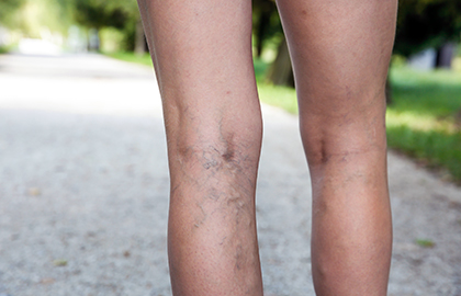 Varicose and spider veins on legs