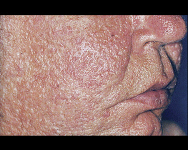 person with rosacea on face