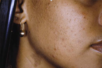 A woman of color's acne