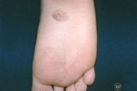 Congential mole on bottom of foot
