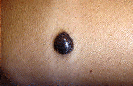 Melanoma on a girl's arm
