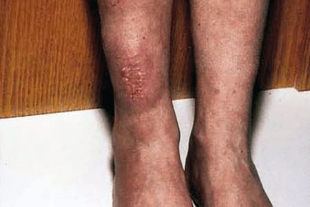Hard and waxy lumps on discolored skin of a leg could be thyroid disease