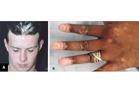 Images of people with vitiligo on scalp and hand