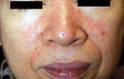 Woman with papulopustular rosacea