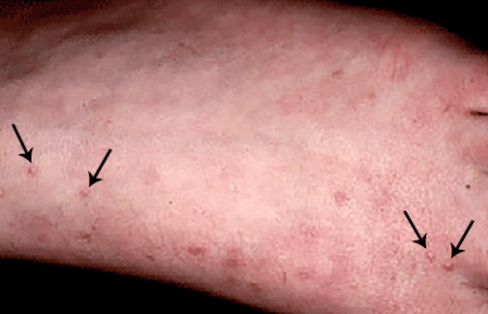 Perforating granuloma annulare on skin