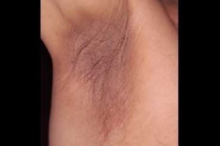 Darker, velvety skin in an armpit is a common sign of acanthosis nigricans