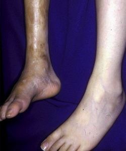 Bone deformity from scleroderma