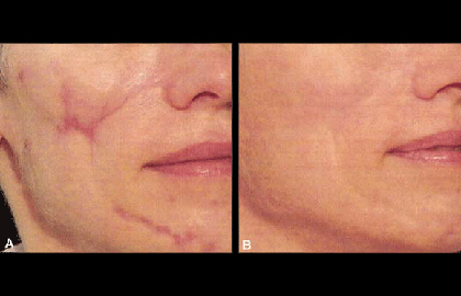 woman's face before and after pictures of laser treatment for scars