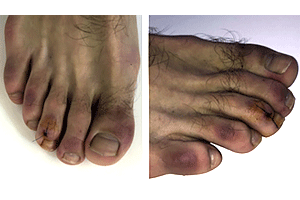 Patient with COVID toes