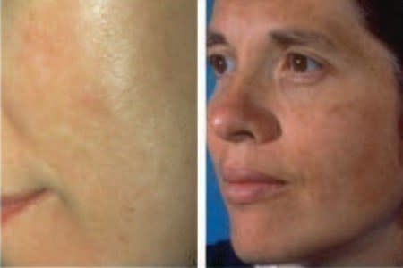 Melasma patches of darker colored skin on the cheeks