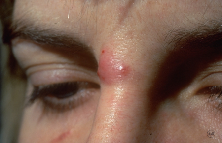 acne cyst on woman's face