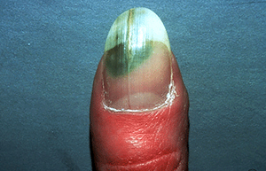 Infection under nail