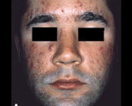 Acne nodules and cysts