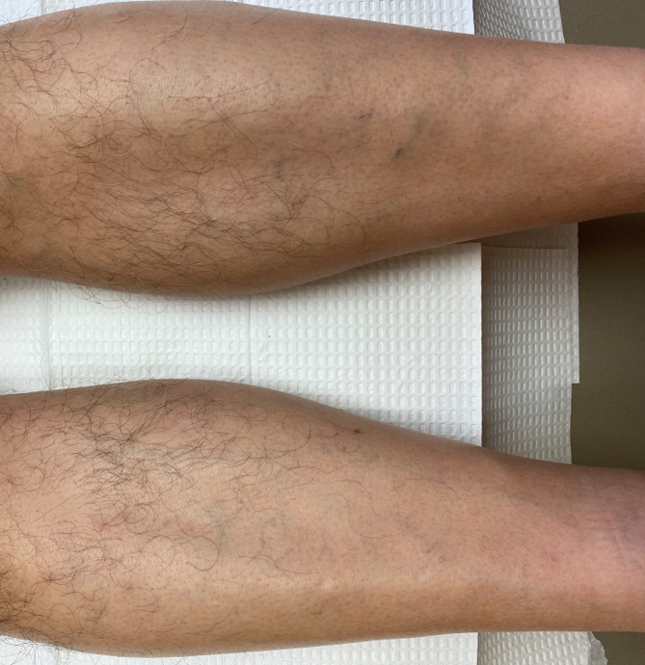 DWII image of hair loss of legs