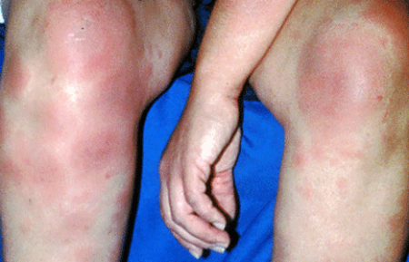Sarcoidosis rash on both lower legs and the arm