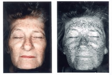 Extensive UV sun damage on 64 year old woman's face