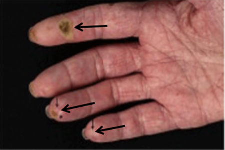 Sores and calcium deposits on fingers from scleroderma