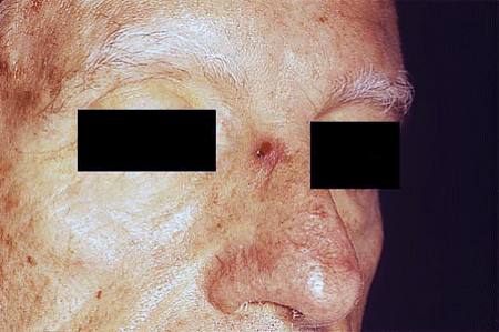 Merkel cell carcinoma on bridge of nose of senior man