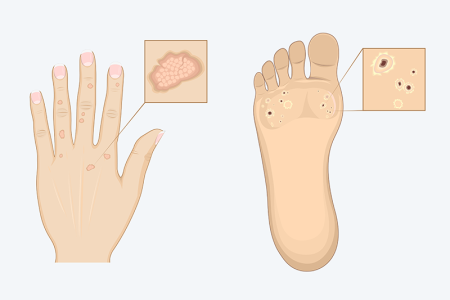illustrations of warts on hands and feet