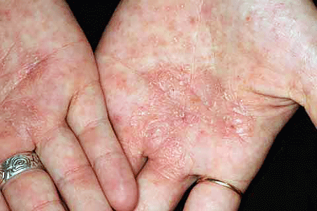 Dyshidrotic eczema on woman's palms