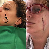 Public>Public-health>Skin-cancer-awareness>Story>Tracy-Callahan