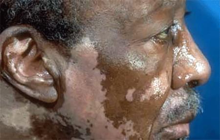Vitiligo Signs And Symptoms