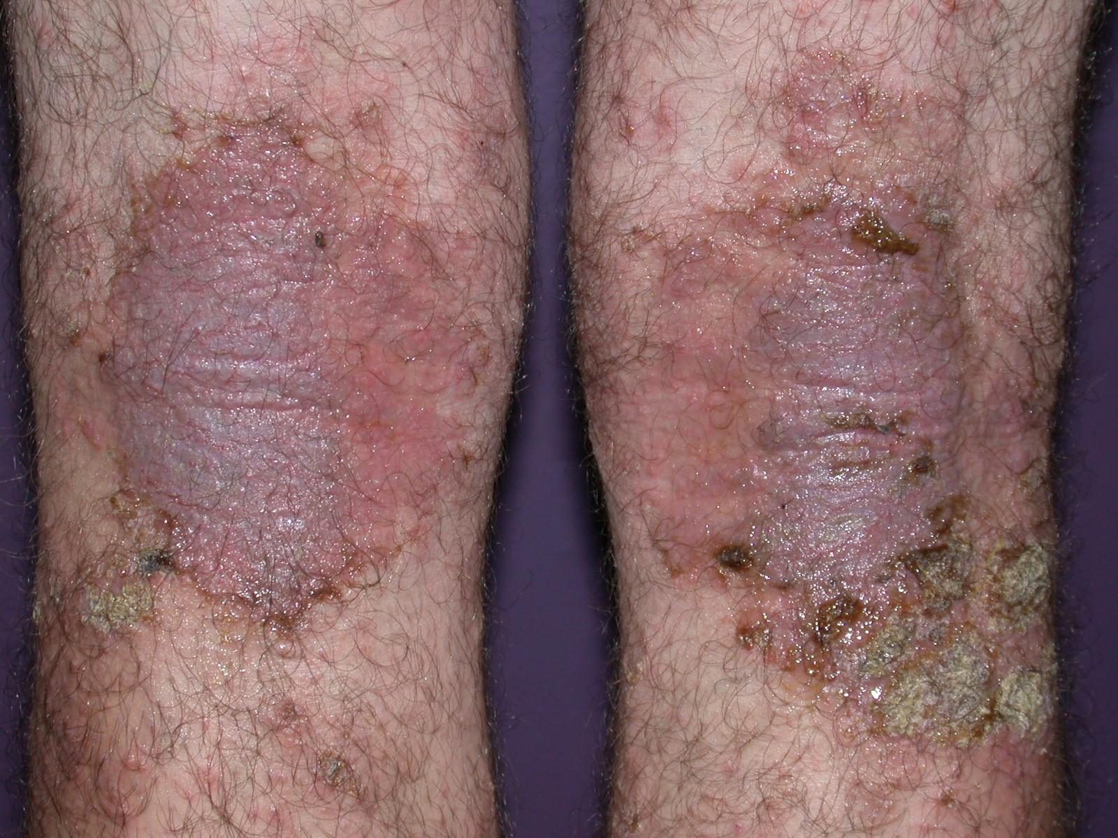 Image of Staphylococcal infection in atopic dermatitis from DermNetNZ